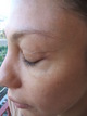 vein after brow lift